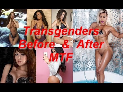 Post op tranny before and after