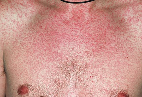 Photos of adults with measles