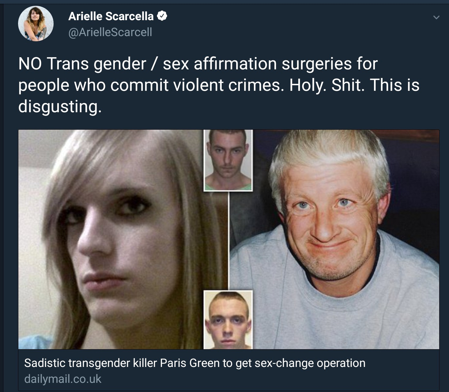 Persons having sex change operations