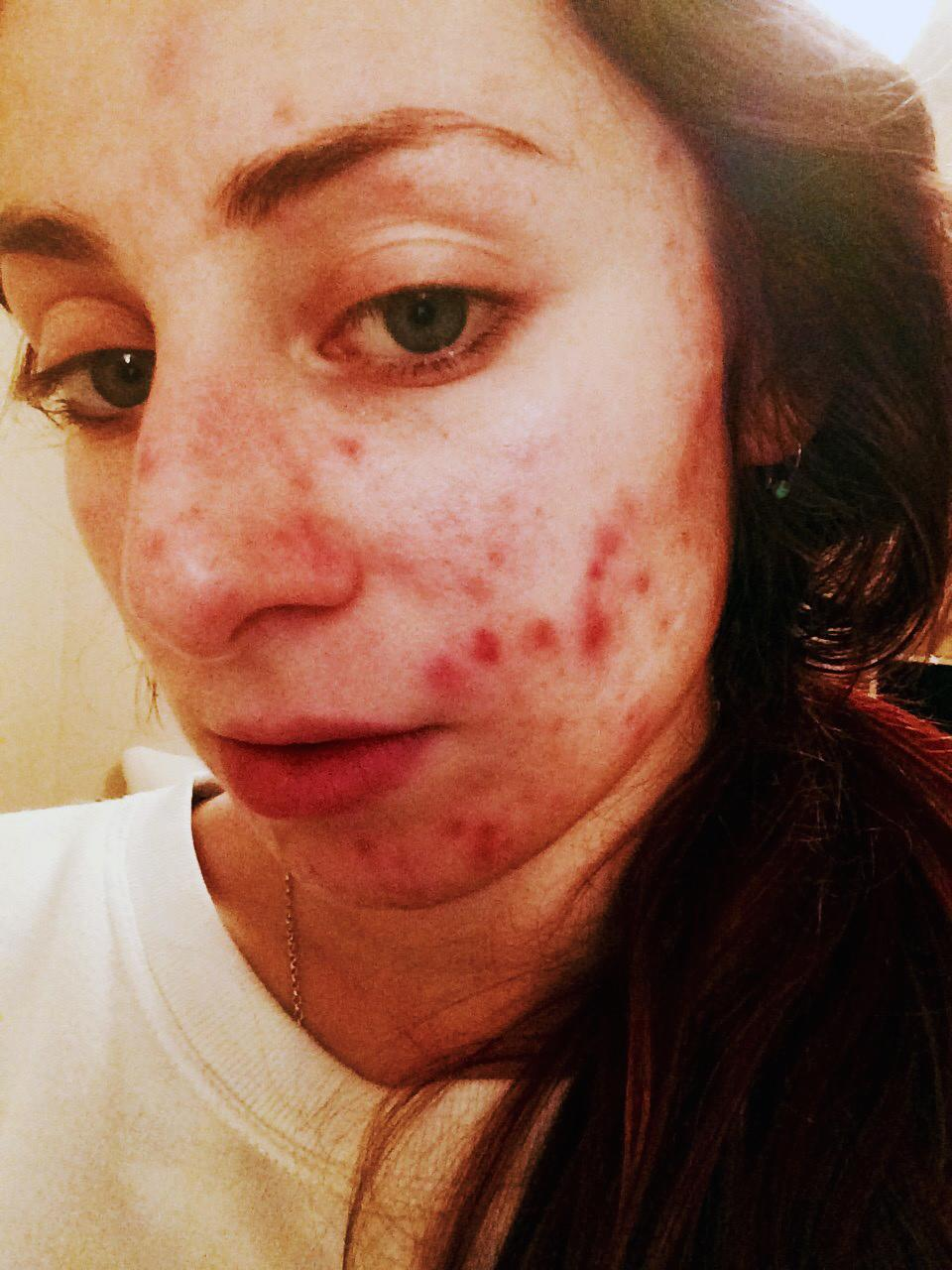 Sex girl with acne