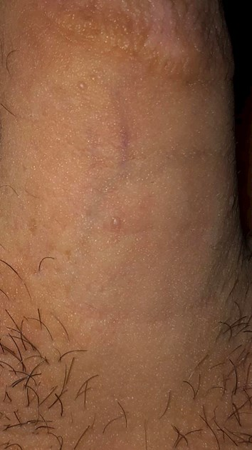 Multiple bumps on penis