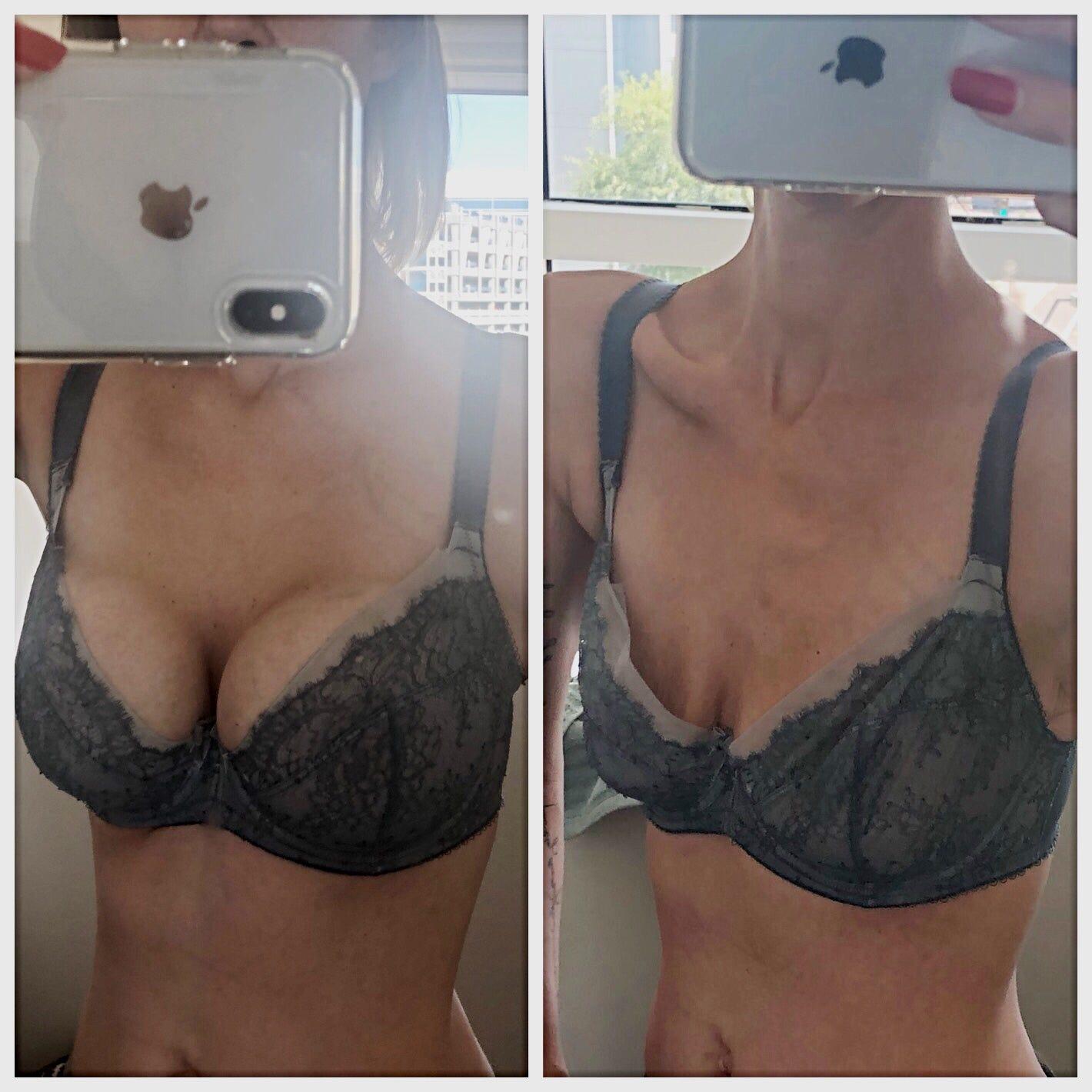 Best pics of boob life