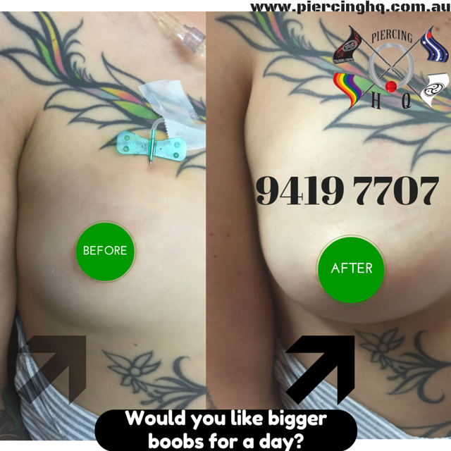 Who is doing saline breast inflation