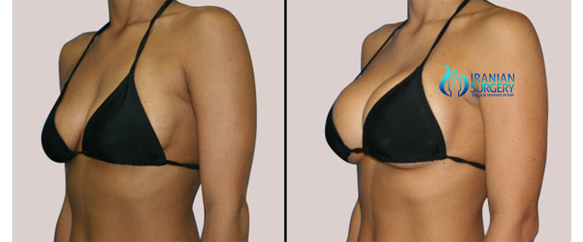 What does breast augmentation cost