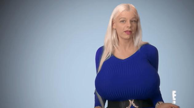 Worlds biggest breast implants