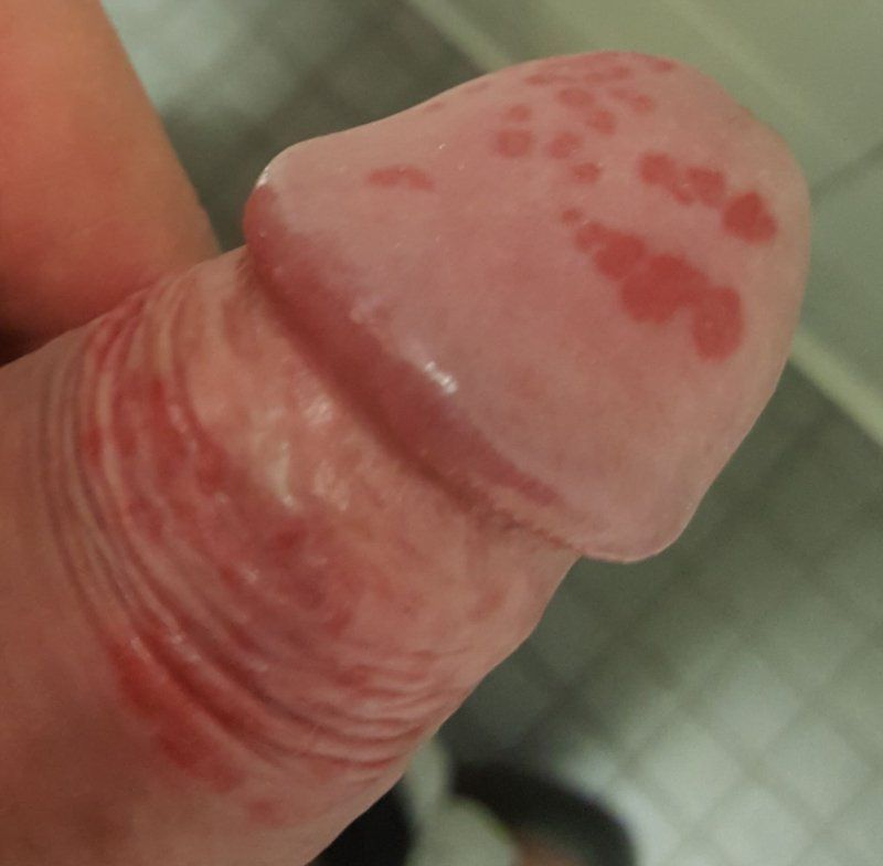 Red blotches head of penis