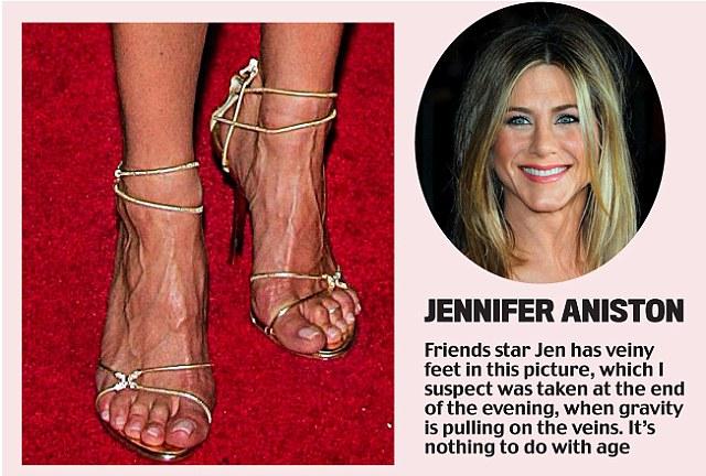 Anna nicole smith toes