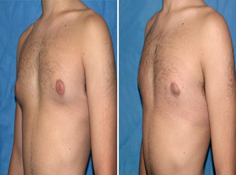 Breast dc reduction washington