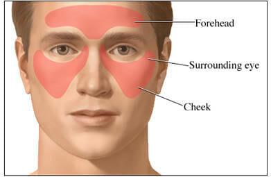 Treatment of facial cellulitis