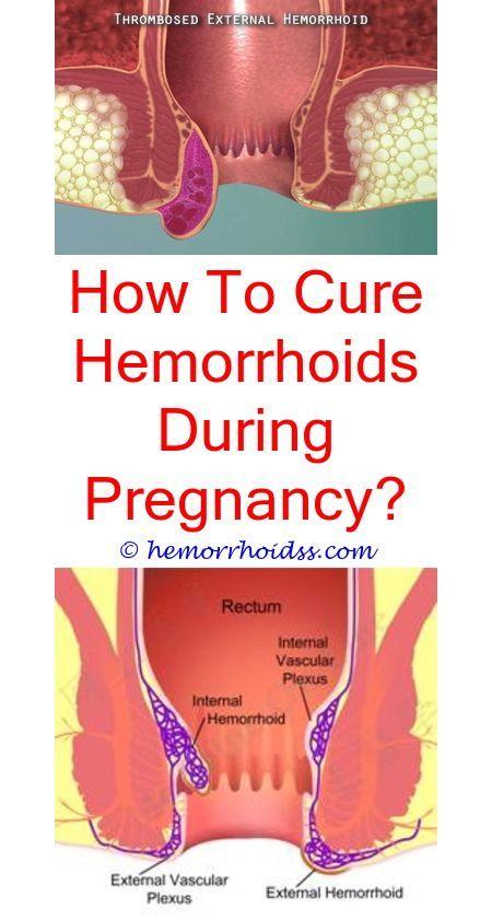 Anal sex cause hemorrhoids