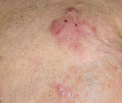 How to flatten a hypertrophic facial scar