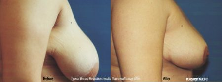 Breast dc reduction washington