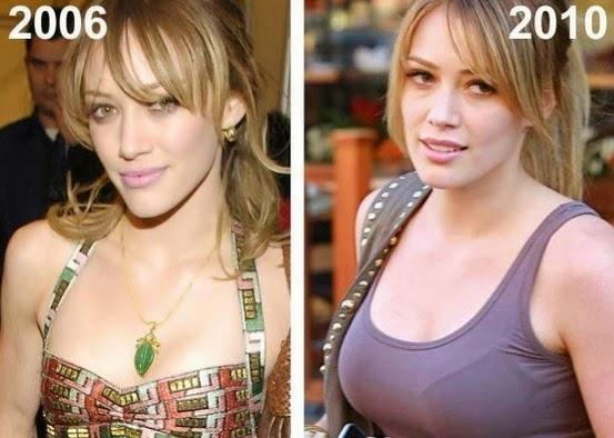 Jennifer carpenter breast implants
